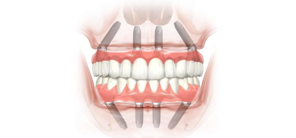 Метод all on 4 – современный и щадящий подход к восстановлению зубов